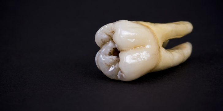 John Lennon's tooth got sold for an astounding $31,200 at the auction last Saturday.